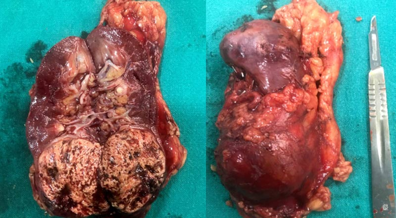 Kidney Cancer-operated Laparoscopically at SRMS IMS